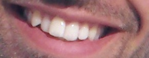 zubi-boris